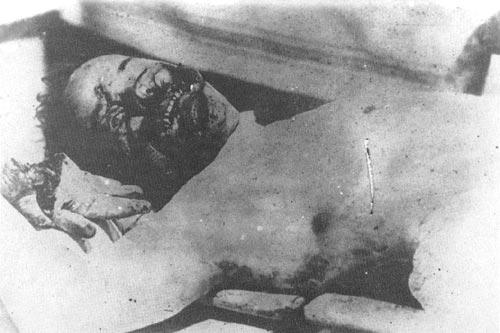 Доктор Беляев, чех. Зверски убит в Верхнеудинске. На фотографии видны отрубленная кисть руки и изуродованное лицо.